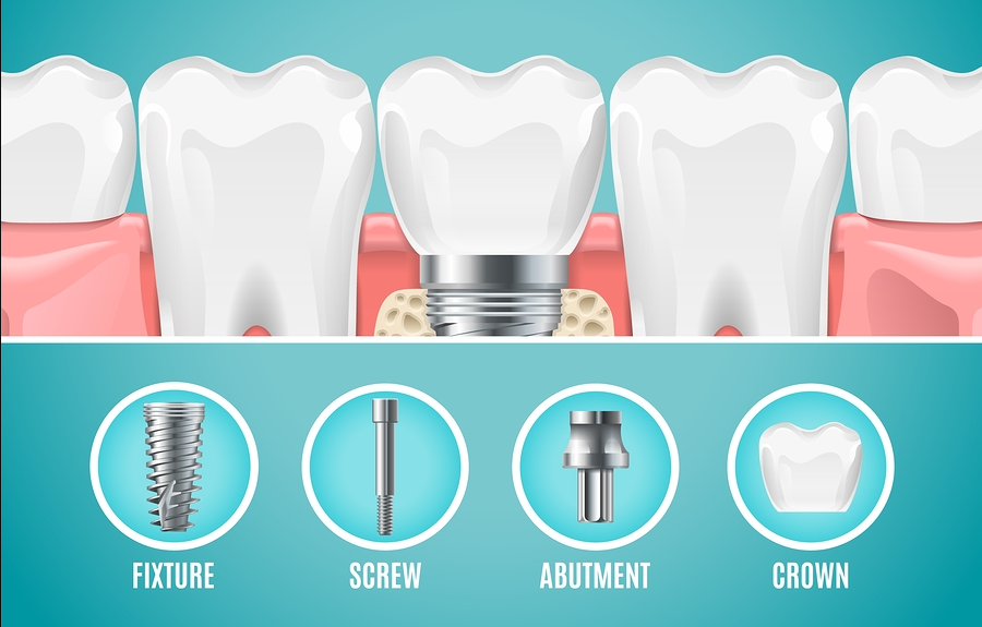 Dental Implant Structure. Vector Reallistic Tooth Implant Cut. D