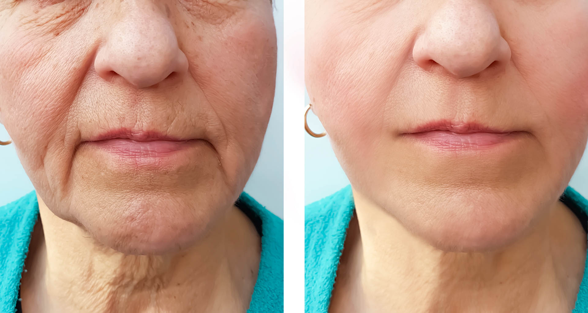 Elderly woman wrinkles face before and after the procedure
