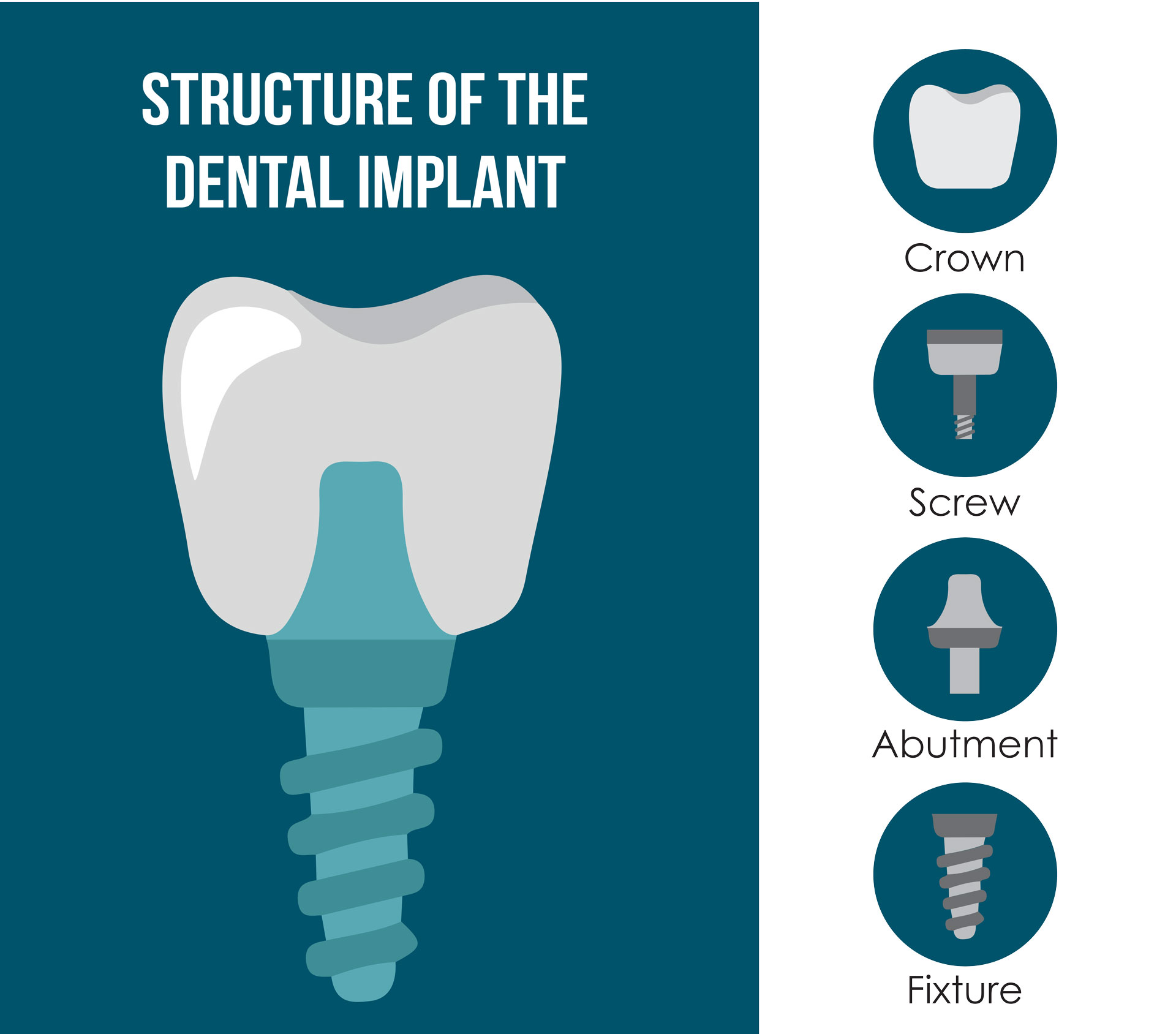 Vector illustration of the Dental Implant Structure